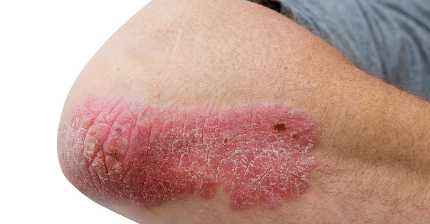 Psoriasis: Causes, Triggers, Diagnosis & Treatment