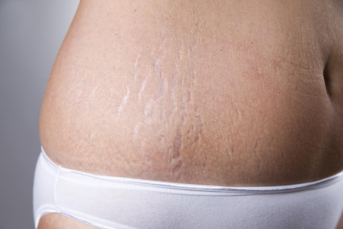 Stretch Marks: Why They Appear And How To Heal Them